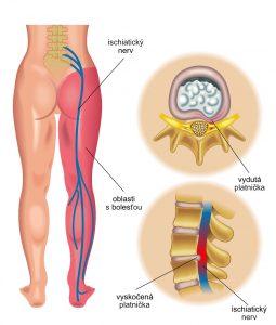 ischiatický nerv