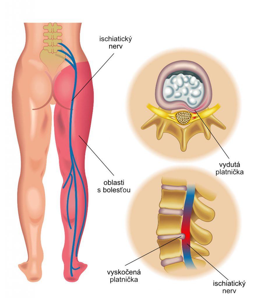 Bolesť v sedacom svale. Spoznajte svoj ischiatický nerv.